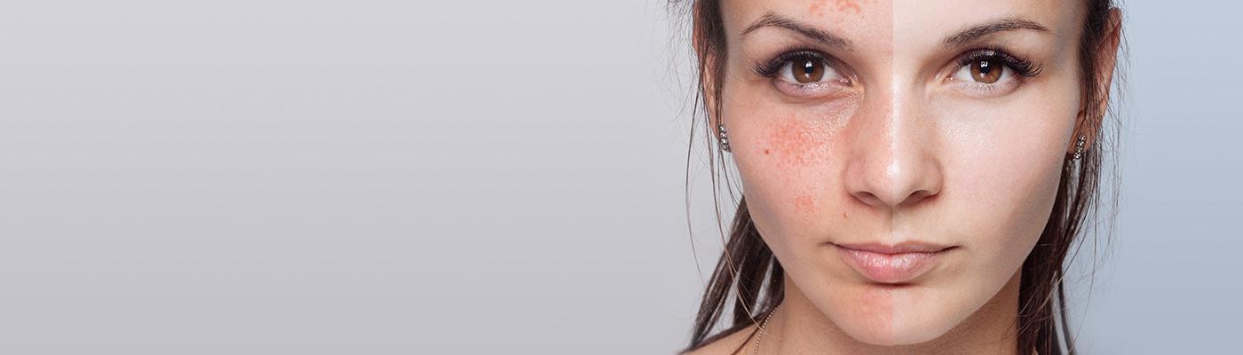 leczenie trądziku różowatego klinika miracki warszawa cutera super ceny dzialanie efekty