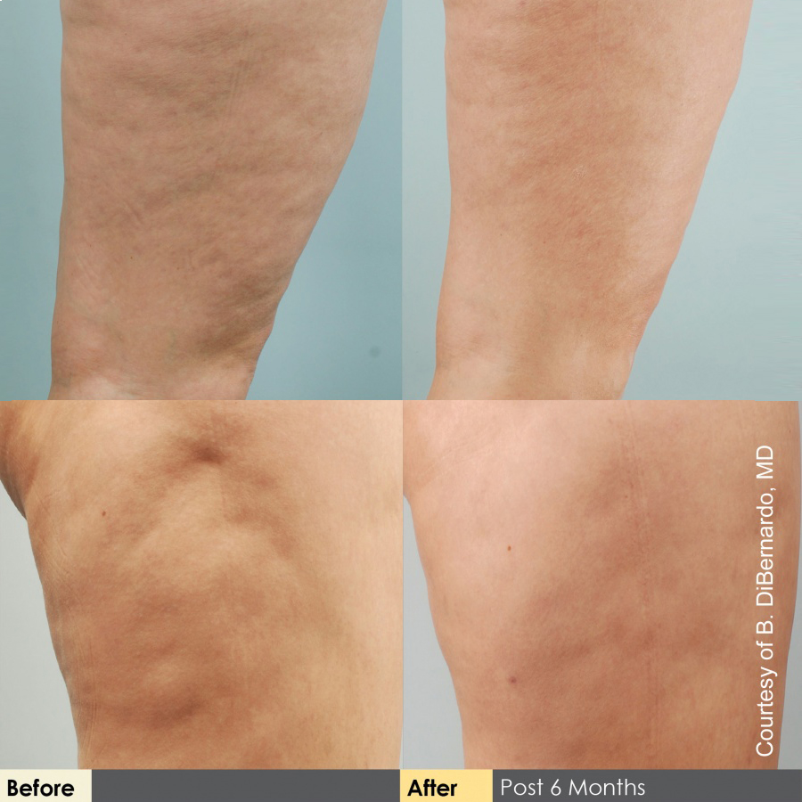 cellulaze-effect-klinikamiracki