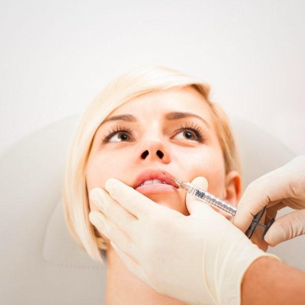 powiekszanei ust kwasem hialuronowym - efekty