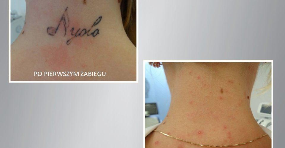 pico_sure_usuwanie_tatuażu_klinika_miracki_warszawa