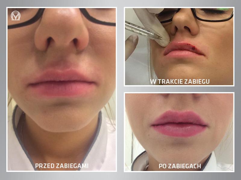 powiększanie ust klinika miracki warszawa super efekt dobre ceny efekty gwarantowane wow