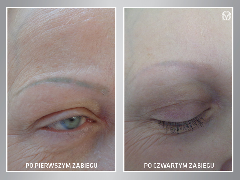Klinika Miracki Warszawa usuwanie makijażu pernamentnego super efekt ceny opinie