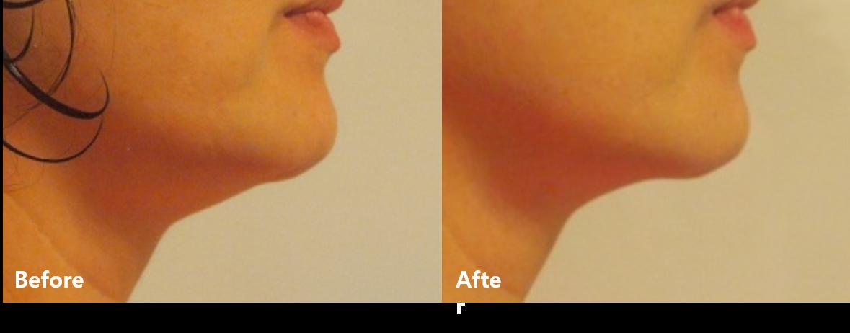 Efekty przed i po. Lifting HIFU urządzeniem Sono Queen