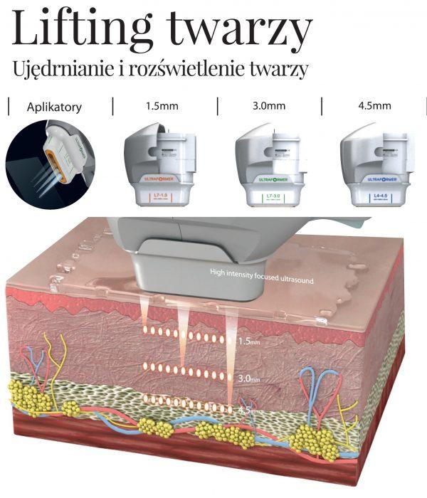 Ultraformer III Klinika Miracki