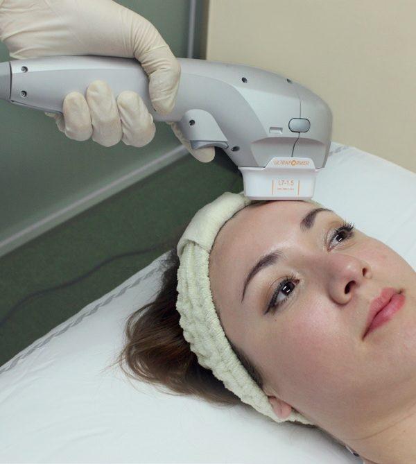 Przebieg zabiegu Ultraformer III Klinika Miracki