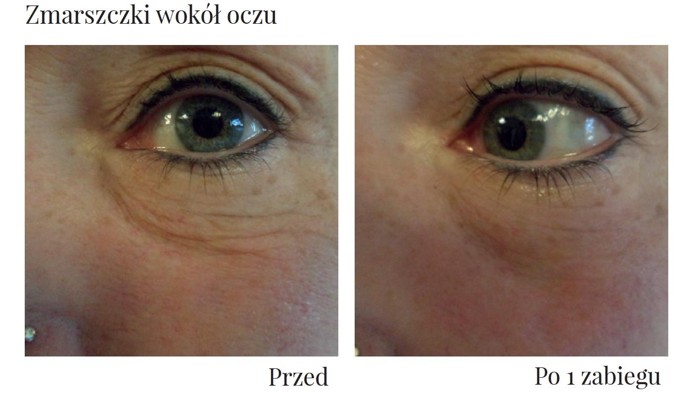 Efekty zabiegu Ultraformer III w okolicy oczu Klinika Miracki