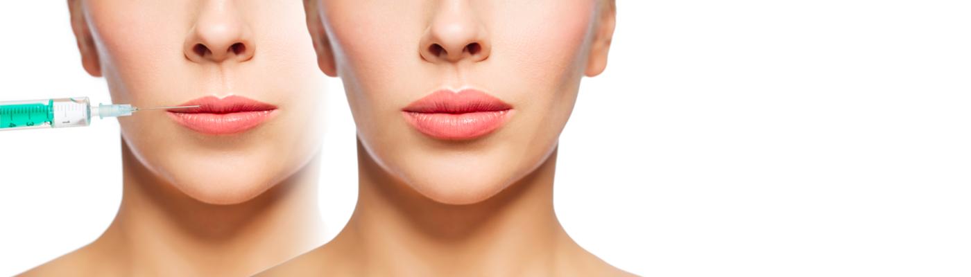 Wypełniacze tkankowe Neauvia – odmładzanie dostosowane do potrzeb Twojej skóry!