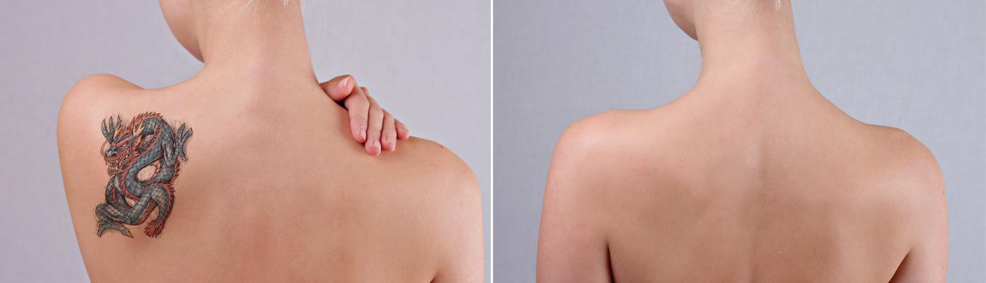 Usuwanie tatuażu laserem pikosekundowym. Najlepszy sposób na tatuaż w każdym kolorze.