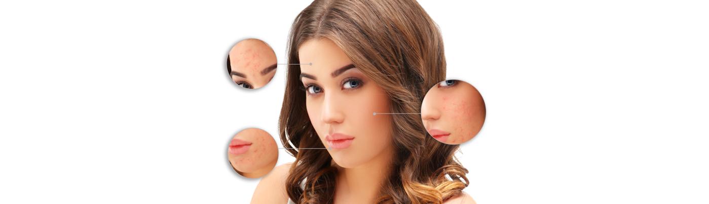 5 największych mitów dotyczących leczenia trądziku. Zobacz, czego należy się wystrzegać!