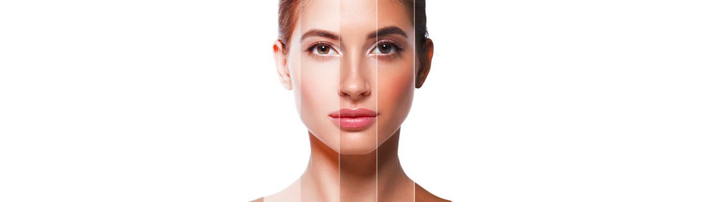 Poznaj nowoczesne metody usuwania melasmy – pożegnaj brzydkie przebarwienia skóry!