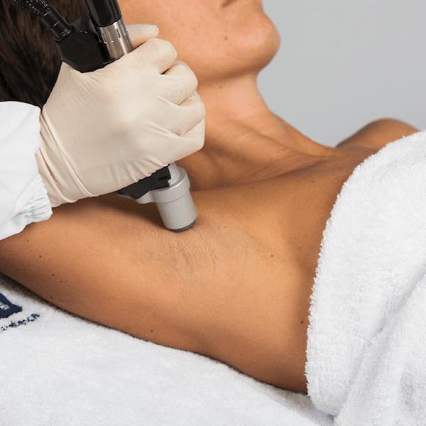 Skuteczna epilacja laserem Motus zabieg na pachy Klinika Miracki Warszawa