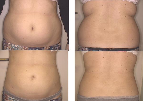 LipoLife - liposukcja brzucha