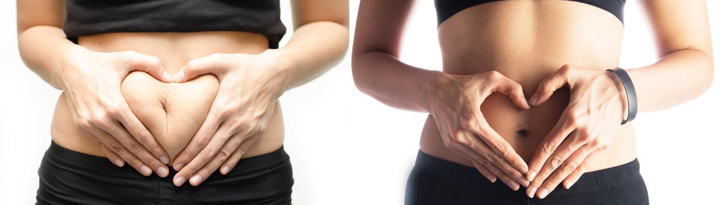 Nie możesz pozbyć się boczków lub tłuszczu z brzucha? Sprawdź jak zadbać o sylwetkę!