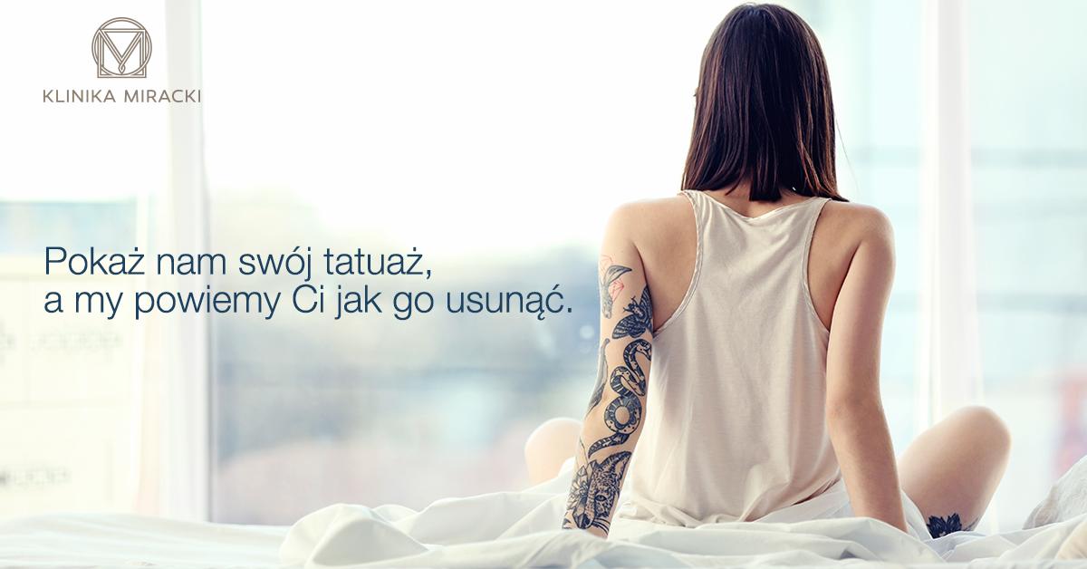 Skuteczne Usuwanie Tatuaży Klinika Miracki Warszawa