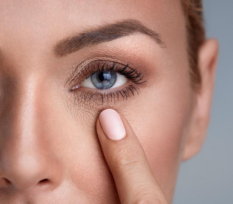 usuwanie cieni pod oczami - mezoterapia iglowa