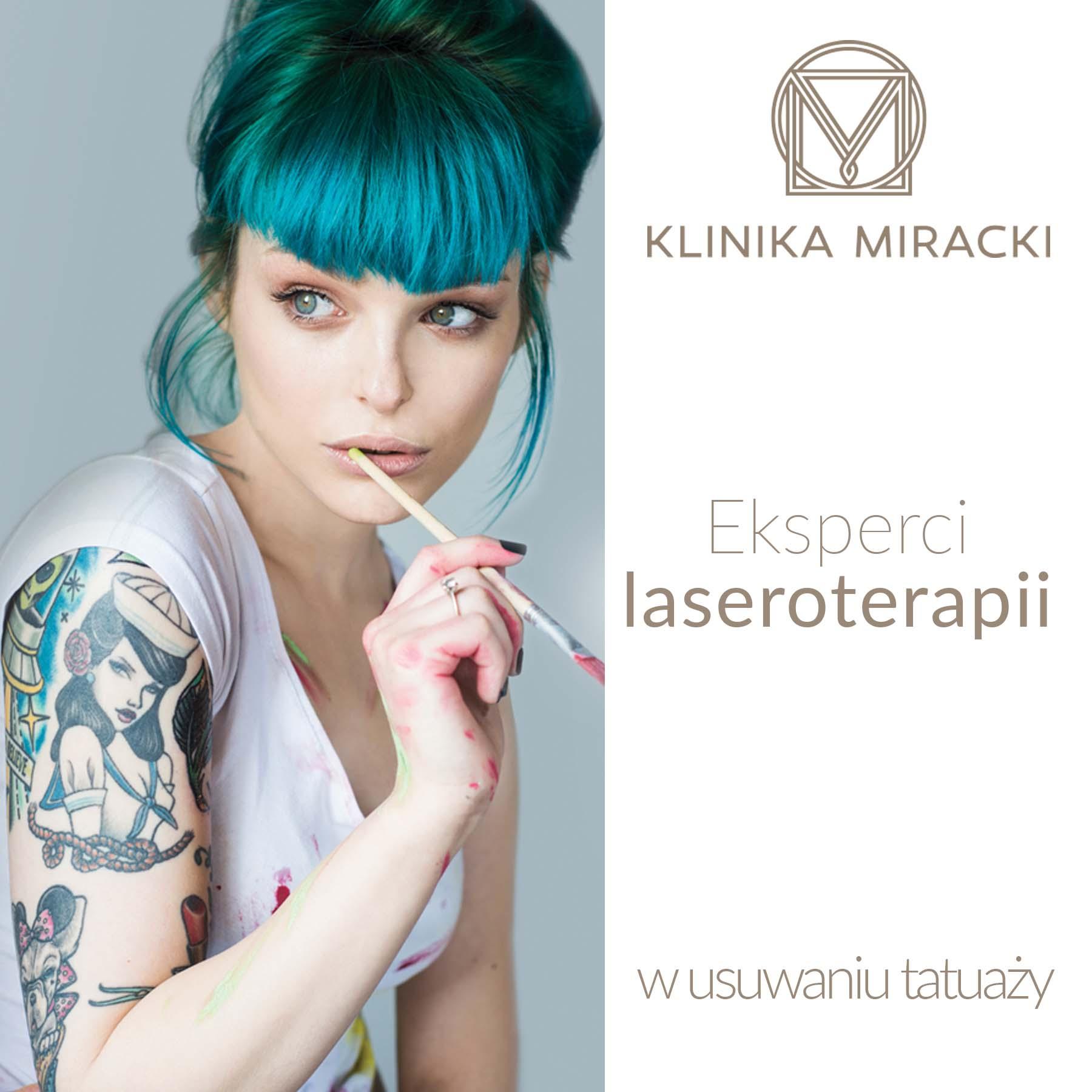 Laserowe usuwanie tatuażu. Sprawdź, co radzi specjalista!