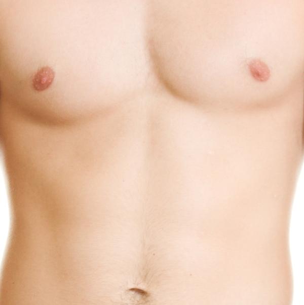 Operacja ginekomastii